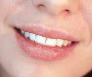 乾燥したガサガサ唇